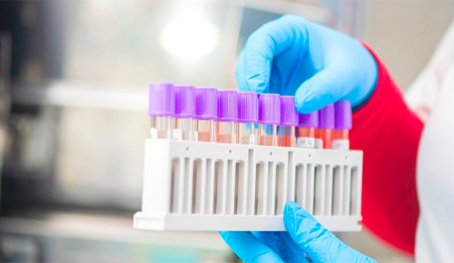 В Москве сделали более 22 млн ПЦР-тестов на коронавирус