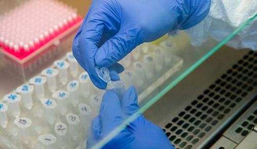 При положительном экспресс-тесте на COVID-19 москвичам сразу начнут проводить лечение